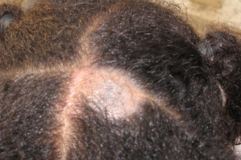 A foltos hajhullás egyik leggyakoribb oka a gombás fertőzés. A képen a gombás eredetű hajhullás jellemző típusa, az úgynevezett tinea capitis látható.