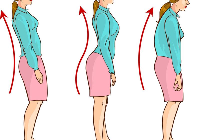 Hanyagtartás az, amikor a gerinc normális görbülete eltér, hátra vagy hasi irányba. Az S formájú, gótikus testtartás és a púposodás is ide tartozik. A csigolyákban nincs eltérés, csak a hát és a törzsizomzat gyenge.
