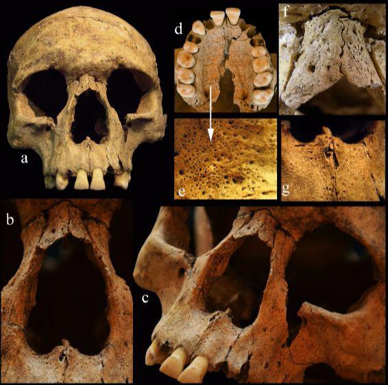 A leprára utaló tipikus csonttani tünetek (a-c) – porozitás (d-e), gyulladás- és csontfelszívódás nyomai (f-g) – az arckoponyán.
