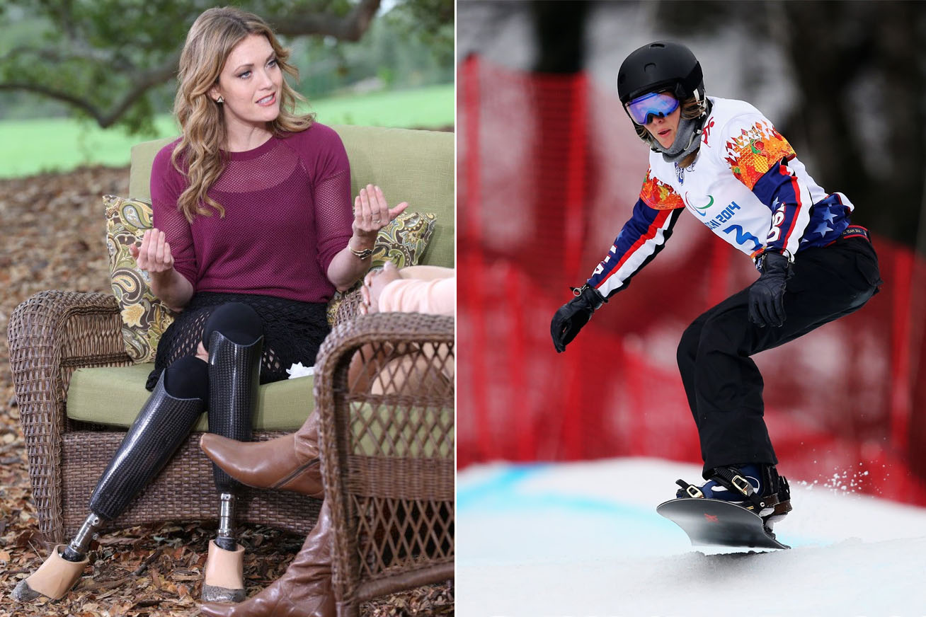 amy-purdy-cover