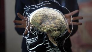 Kiderült, az agyunk tovább működik a halálunk után