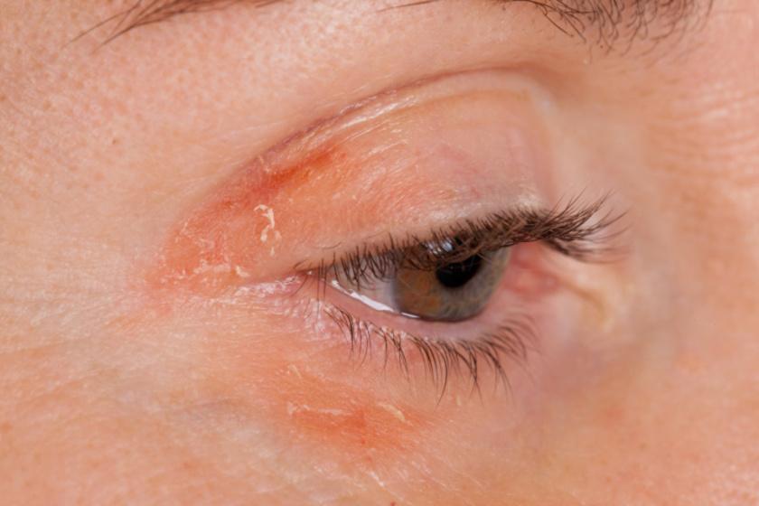Az orvosok és a kutatók szerint a stressz gyakran okoz pikkelysömört, ami száraz, kipirosodott és pikkelyes bőrrel jár.