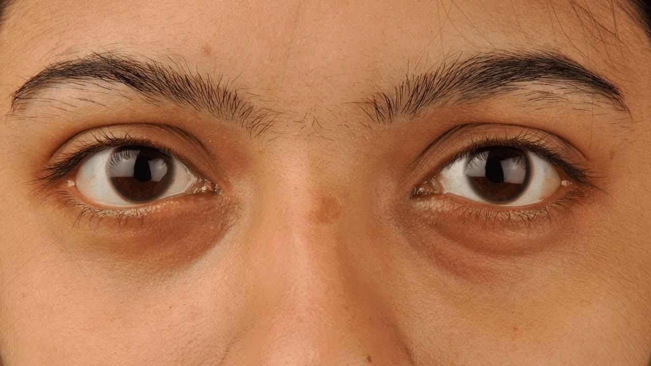 ha a szem alatt vörös pikkelyes foltok vannak hipopigmentált foltok a vitiligóból és a pikkelysömörből hogyan kell kezelni