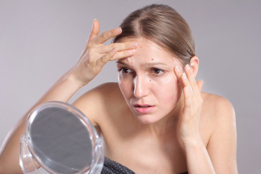 A csúnya akné májprobléma jele is lehet: így jelenik meg a bőrödön