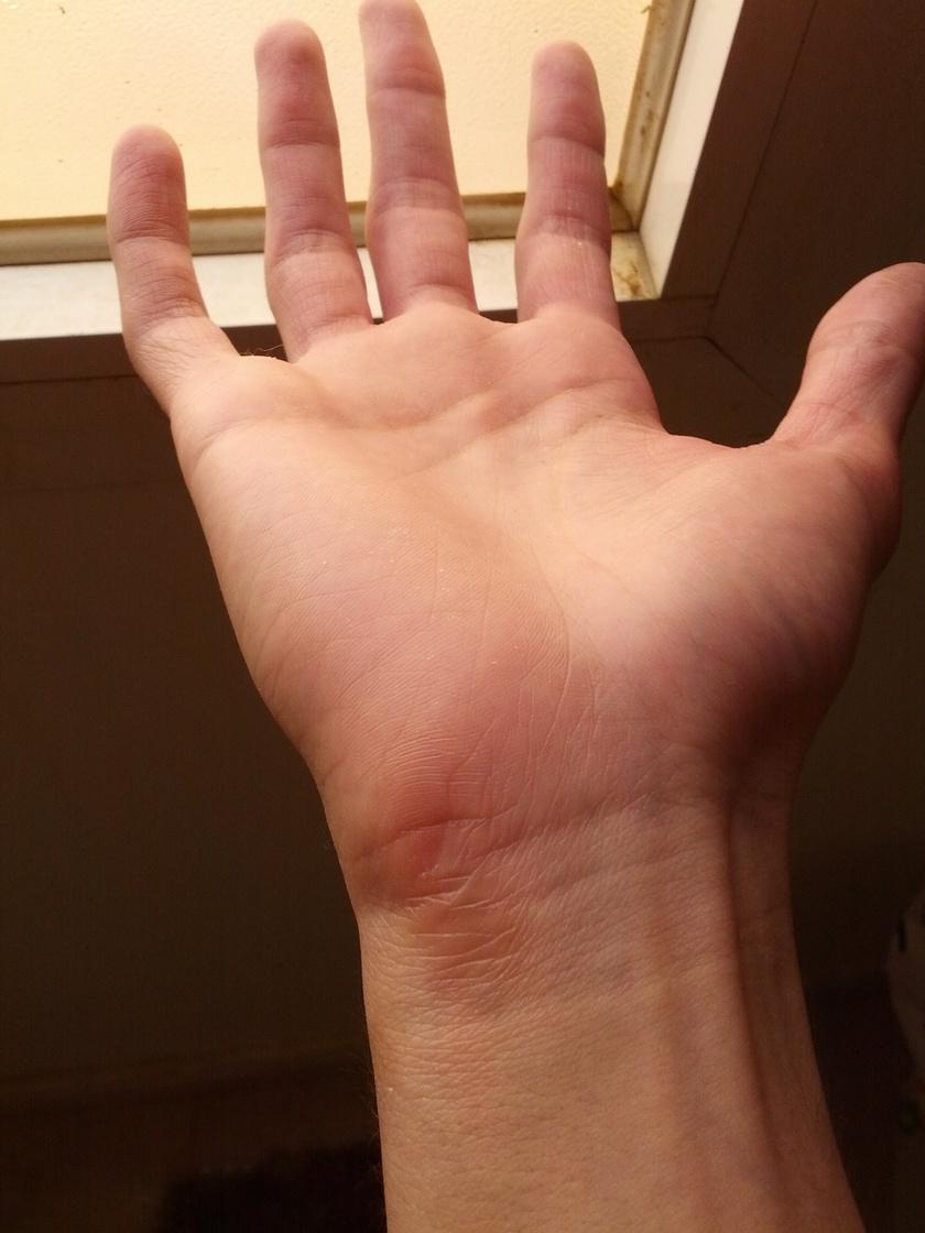 A csuklón kialakuló bőrkeményedés már egy jelzés a test részéről: az állandó, merev kéztartás miatt a csukló és a kézfej terhelése megnőtt.