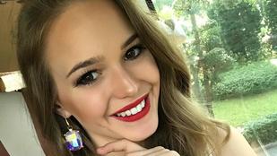 Az ajkait szereti magán a legjobban a babaarcú magyar szépségkirálynő