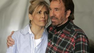Chuck Norris szerint a feleségét megmérgezték egy MRI vizsgálaton