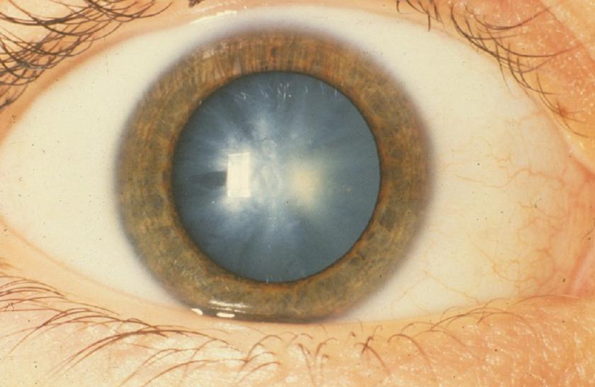 Előrehaladott állapotban így néz ki a szürke hályogos szem.