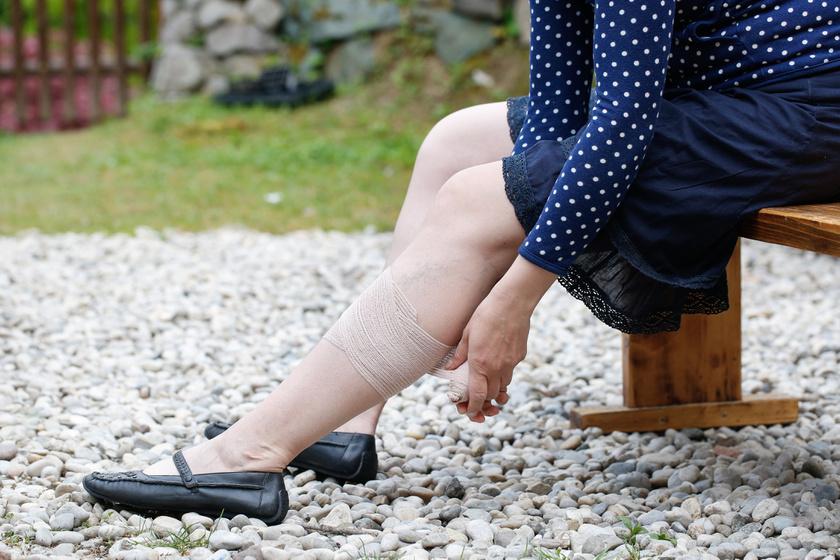 Bedagadt láb trombózis után: mi a teendő, hogy ne alakuljon ki újabb?