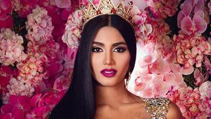 Venezuelának van egy saját Kim Kardashianja, akiből Miss Universe lehet