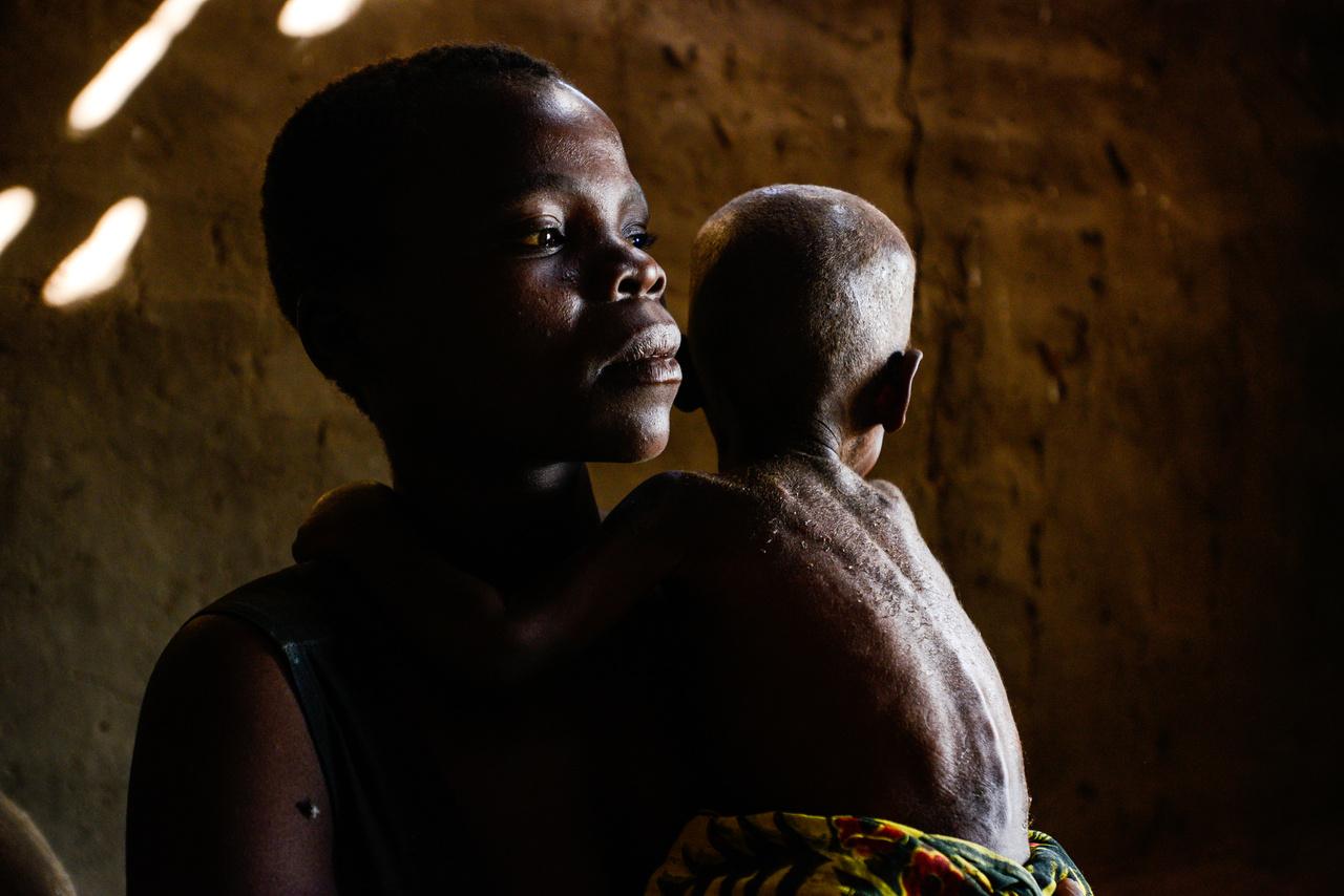 A négygyermekes Makia legkisebb lányával. Az El Niño okozta rendkívüli szárazság miatt a kelet-afrikai malawi lakosságának több mint fele élelmiszersegélyre szorult, 8,5 millió embert fenyegetett éhínség 2016-ban.