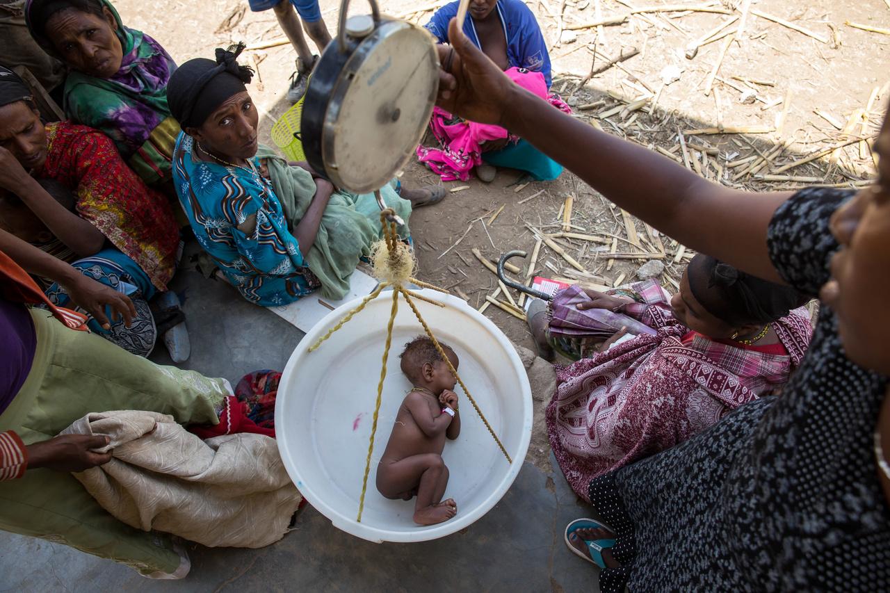 Csecsemő súlyát mérik meg Etiópában. Kelet- és Dél-Afrikában közel egymillió gyereknek lenne szüksége ellátásra súlyos alultápláltság miatt. A helyzetet rontotta, hogy régen nem látott aszályok és árvizek kísérték néhány éve az elmúlt 50 év legerősebb El Niñóját, ami miatt a világ egyik részén nem volt elég eső, máshol viszont pont túl sok csapadék hullott. Paraguayban egész városrészek néptelenedtek el az áradások miatt, Afrikában azonban száz éve nem látott szárazság köszöntött be.