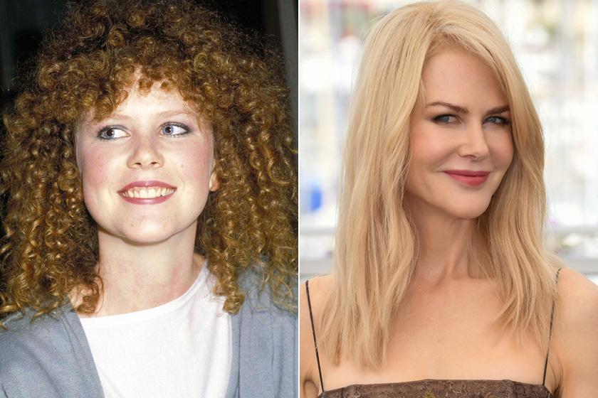 Szinte alig lehet felismerni Nicole Kidmant ezen a képen: még az arcformája is teljesen más lett, mint a tinikori fotóján volt.