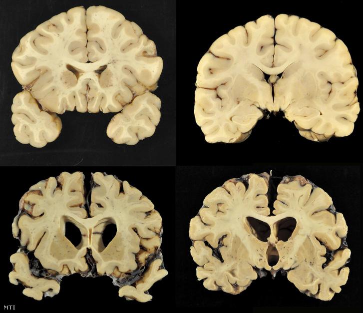Fent egy egészséges ember, alul egy negyedik stádiumú CTE-ben szenvedő korábbi amerikaifutball-játékos agyának metszete a Bostoni Egyetem leletén