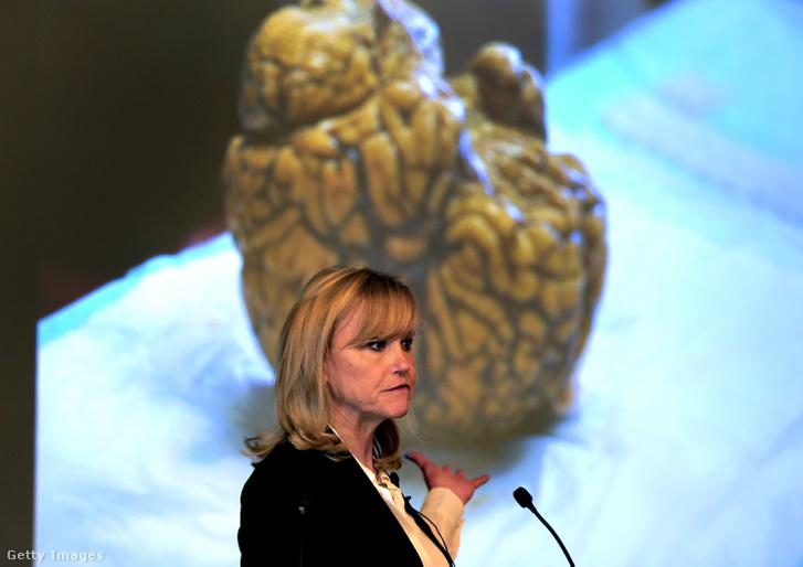 Az agykutatásokat végző Dr. Ann McKee mutatja be a CTE jeleit Aaron Hernandez agyán