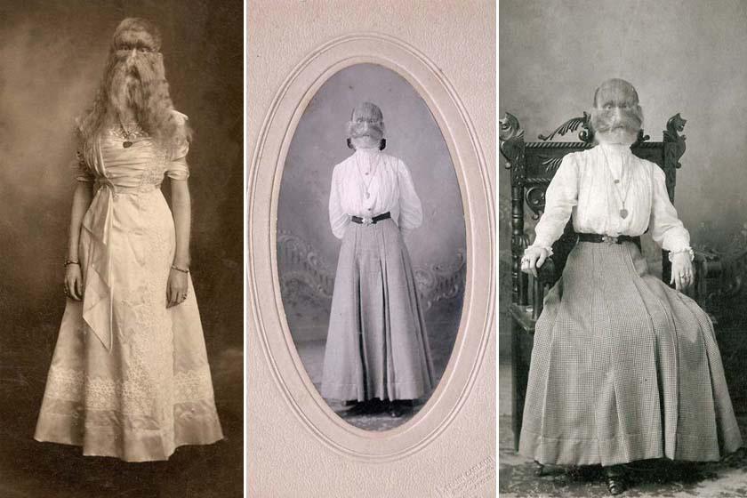 Alice Amerikában, Minnesotában született 1884. március 14-én. Kicsi korától 1915-ig kereste családjának a pénzt azzal, hogy közönség előtt mutogatták.