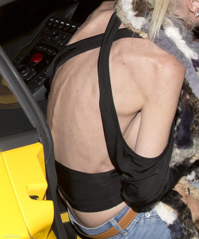 A fotókat küldő Northfoto képügynökség szerint a 165 centi magas színésznő most körülbelül 36 kilót nyom, de a közlés hitelességéért nem kezeskedünk.