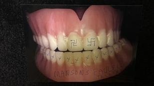 Múzeumba viszik Charles Manson műfogsorát