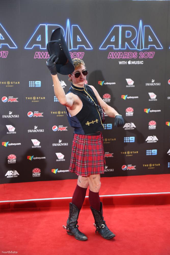 Callinan egy zenei díjátadót választott ahhoz, hogy eloszlassa a kérdéseket azzal kapcsolatban, hogy a férfiak tényleg teljesen meztelenek-e a skót szoknya alatt.