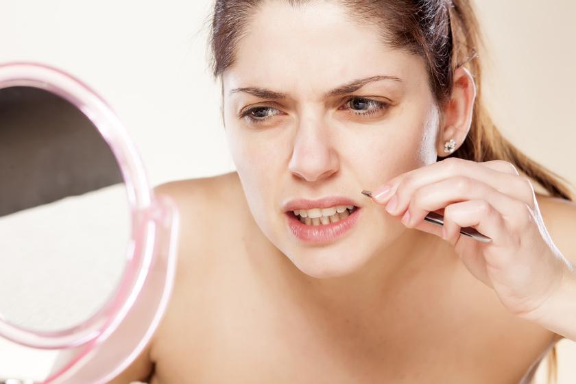 A tesztoszterontúltengés a nőknél erősebb szőrszálak megjelenését okozhatja az állon, valamint a száj fölött.