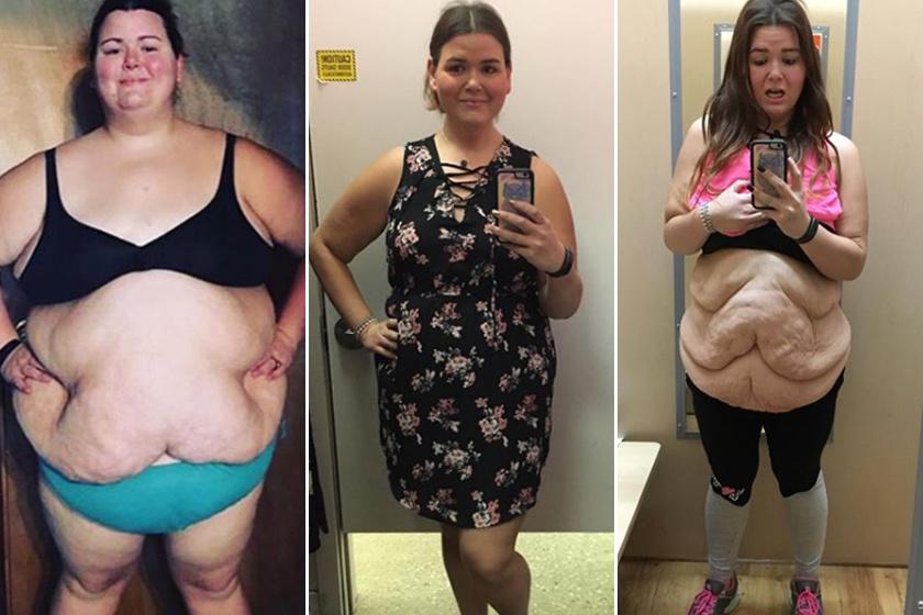 Jessica Weber a tészta, a krumpli és a napi két ebéd rajongója volt, míg 181 kilóra nem hízott. 2016 januárjában gyomorszűkítő műtétet vállalt. Azóta több mint a súlya felét elvesztette, és a sok fehérjét, zöldséget, mozgást részesíti előnyben.