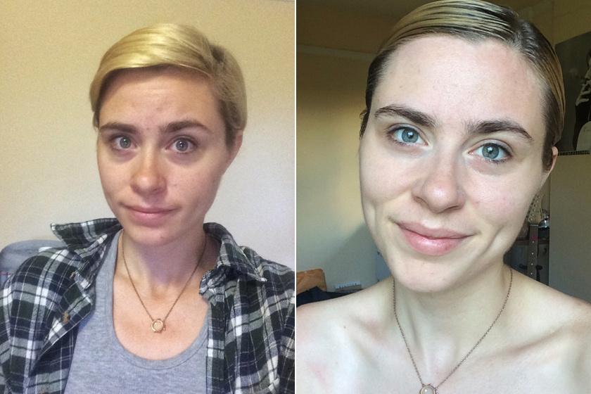 Lindsey a kísérlet előtt - balra -, illetve az utolsó napon - jobbra.