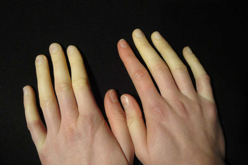 Raynaud-Syndrom