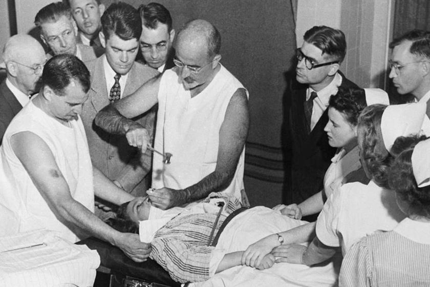 A Walter Freeman által feltalált lobotómia során a szemhéjon keresztül az agyba vezettek egy jégvágószerű eszközt, mellyel elvágták az agyat a prefrontális kéregnél. Mentális betegségeknél használták, a kegyetlen módszerrel nyomorították meg John F. Kennedy lányát, Rosemary-t is.