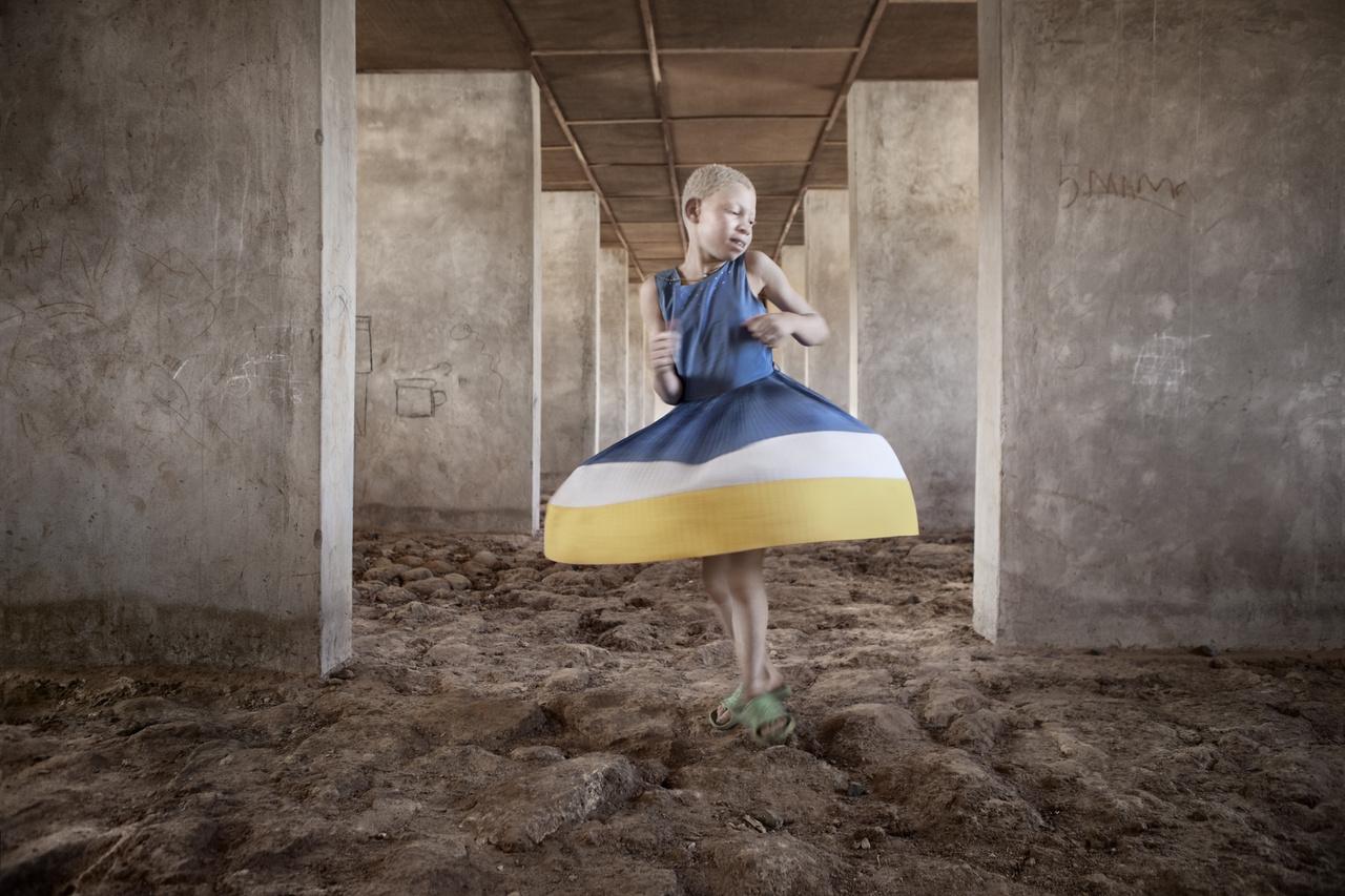 Az afrikai albínók sorsa gyakran visszatérő fotótéma a térségben dolgozó riporterek között, mégsem változott semmit a fehér bőrrel született gyerekekkel szembeni társadalmi elutasítás, a babonás félelem. De sokkal hétköznapibb problémáik is vannak: sokan közülük nem tudnak megfelelően védekezni a napfény ellen. Sok albínó hal meg bőrrákban harminc éves kora előtt.