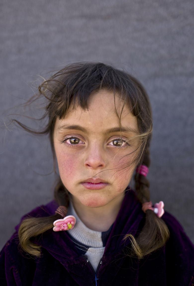 Zahra egy 5 éves szíriai lány, akinek a portréja akár 2017 afgán lánya is lehetne. A fotós szerint a lány arca a szíriai háború néma és mozdulatlan áldozatait szimbolizálja, akik elképesztő borzalmakon és szenvedésen mentek keresztül, most pedig csak a reménytelenség az állandó az életükben. Zahra 2015-ben menekült családjával Jordániába, ahol a mai napig egy sátortáborban élnek. Édesapja taxis volt Szíriában, most idénymunkából próbálja eltartani a családját. A gyerekeknek esélyük sincs iskolába járni. Mohammed Muheisen az AP fotóriportere ezzel a portréval lett első helyen kiemelve a szervezet idei felhívásán.