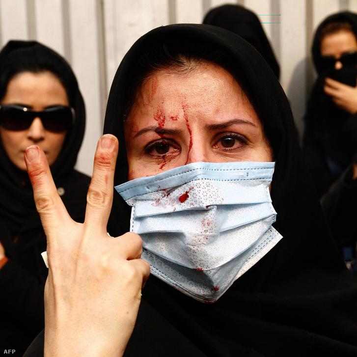 Egy sebesült tüntető 2009 decemberében Teheránban