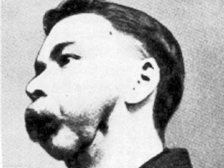 Foszfornekrózistól eltorzult férfi arca