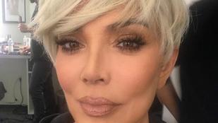 Kris Jenner megmutatta az új arcát