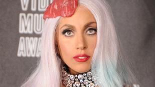 Lady Gagának iszonyatos fájdalmai vannak, ezért végleg lemondta 10 koncertjét
