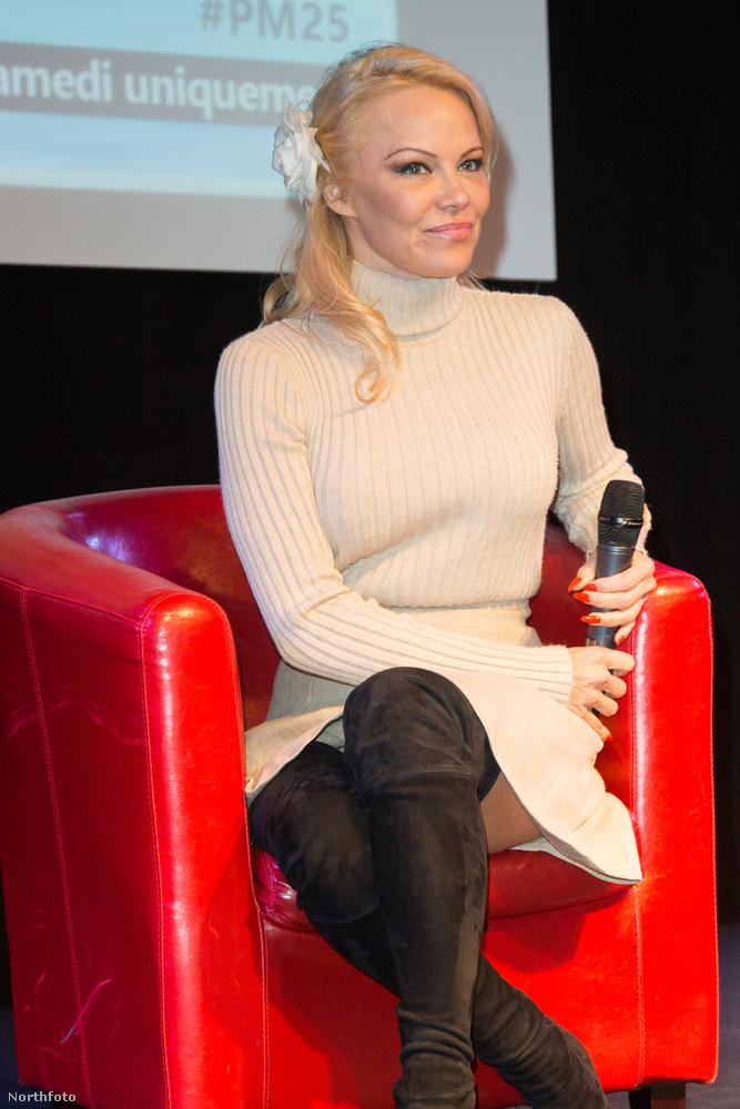 Az előző és a most következő fotók főszereplője ugyanis a Baywatch egykori színésznője, akinek mintha kicsit megszaladt volna a botox az arcán a legutóbbi kezelés során