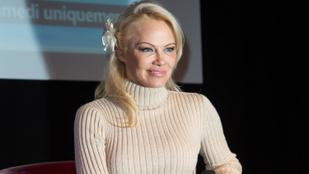 A botox átvette az uralmat Pamela Anderson arca felett