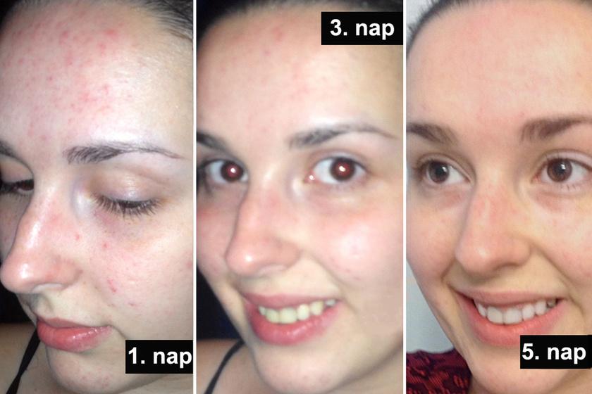 5 napig olajjal mosott arcot, ez történt a bőrével - Őt is meglepte az eredmény