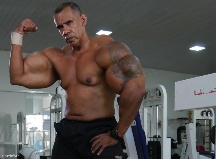 Így néz ki most Alvaro Pereira.