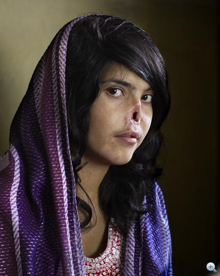 Az 54. World Press Photo nagydíjas képe: Bibi Aisha egy 18 éves afgán lány, akinek a tálibok levágták a fülét és az orrát, mert az erőszakos férje elől hazamenekült családjához. A lányt amerikai katonák mentették meg és vitték Amerikába, ahol több plasztikai műtéten is átesett.