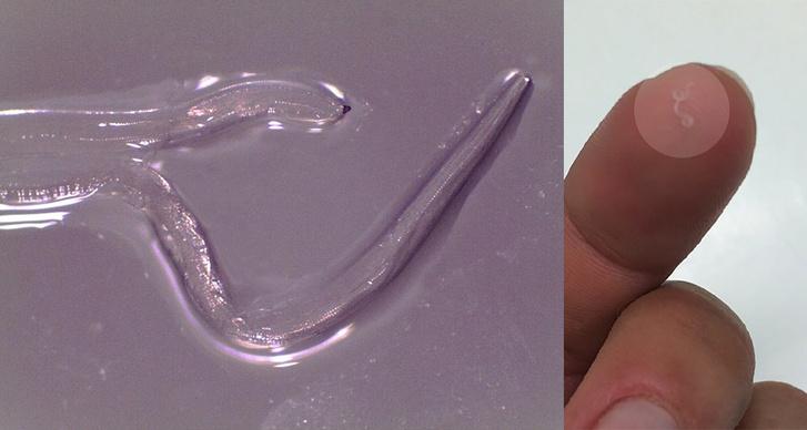 A Thelazia gulosa nevű fonálféreg mikroszkópos képe, és a fajta egyik példánya, amit Abby Beckley szedett ki a szeme sarkából