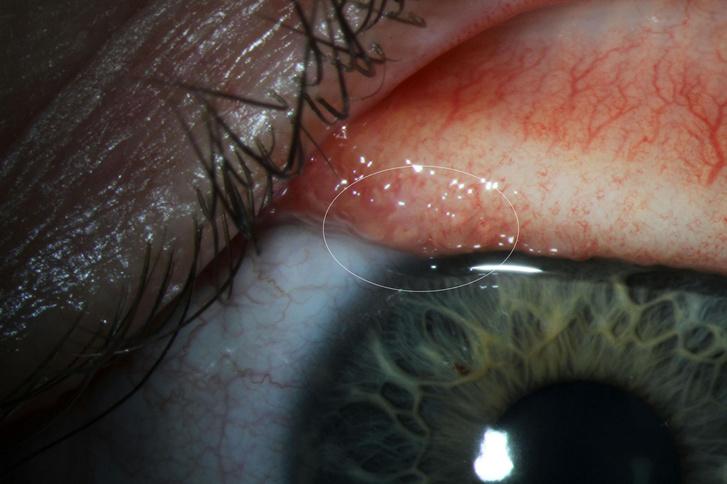 A nőt megvizsgáló orvos fotója a szemhéj alatti lárvákról