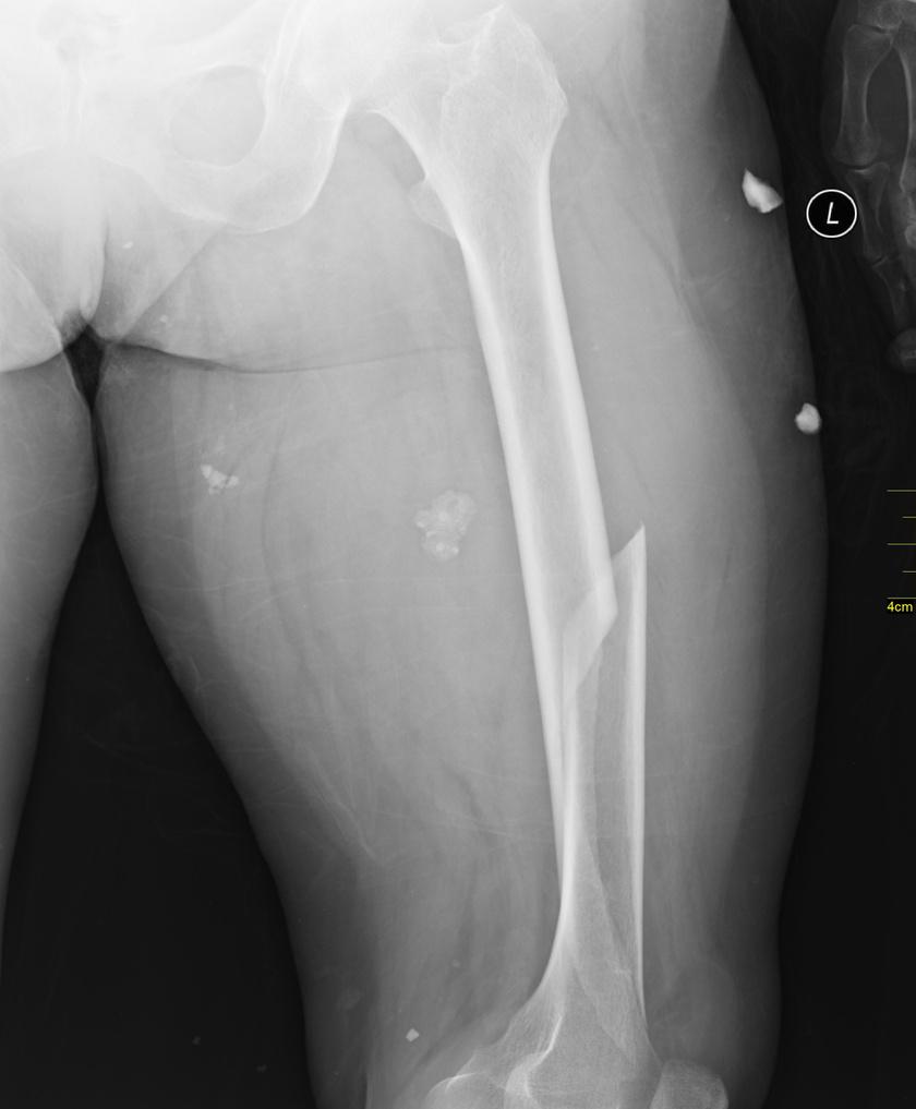 A röntgenfelvétel a combcsont sérülését mutatja meg. Ebben az esetben fekvőgipszet és fémrögzítést kap a beteg.