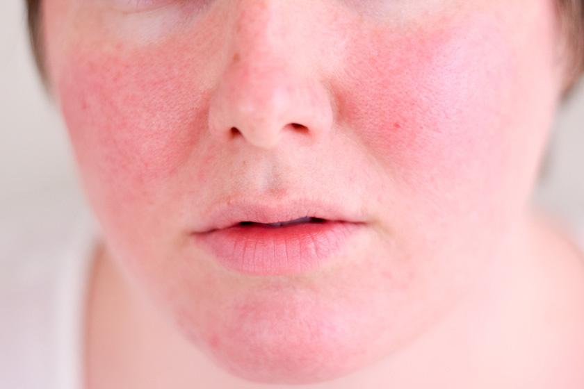 vörös foltok az arcon az antibiotikumok után)