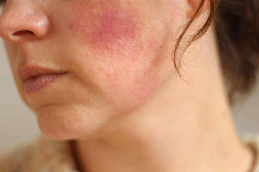 Rosaceás a bőröd, vagy csak kipirosodott? Elmondjuk a nagyon fontos különbséget
