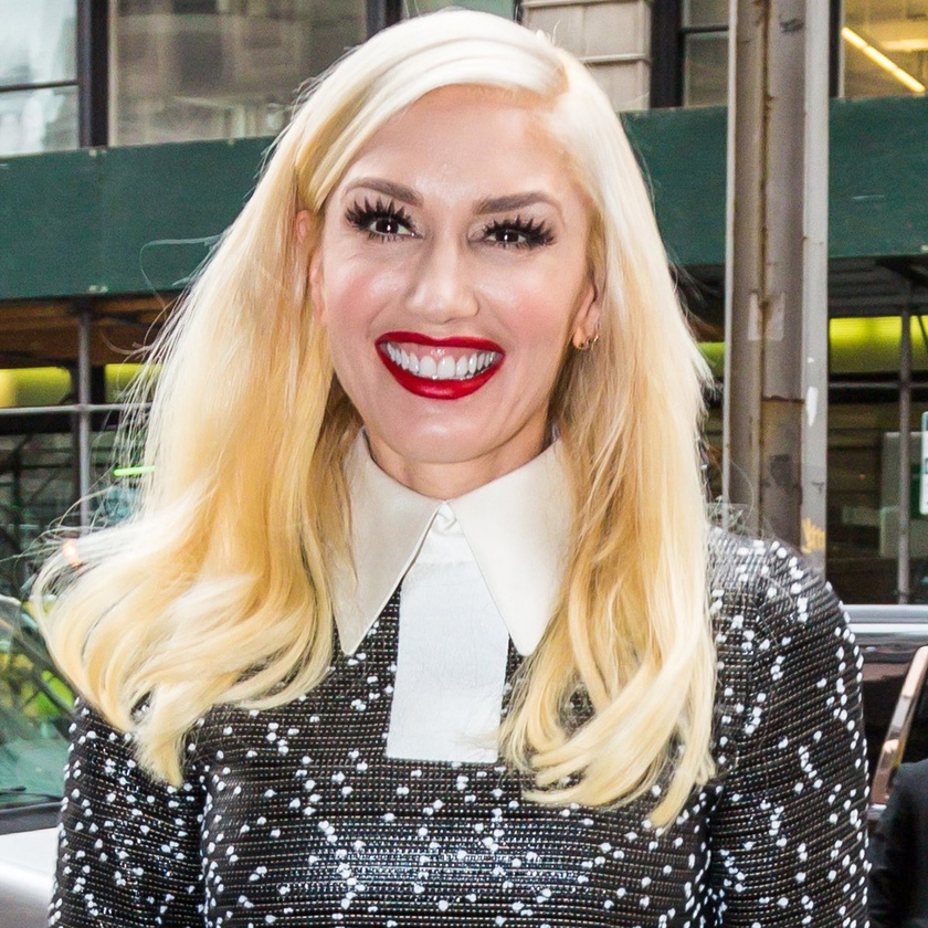 Mintha vicsorítana mosolygás helyett - Gwen Stefani már bánhatja, hogy kés alá feküdt.