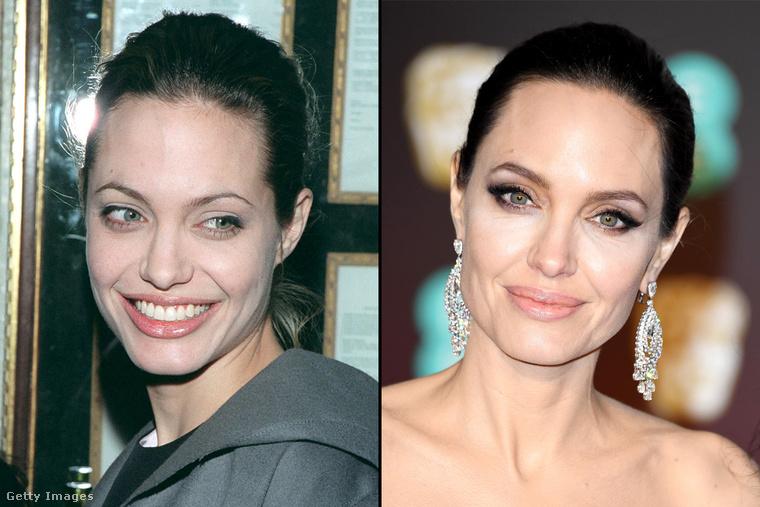 Brad Pitt másik exe sem úszta meg, hogy megvizsgáljuk a szemöldök-evolúcióját és bizony Angelina Jolie esetében is van mit látni.