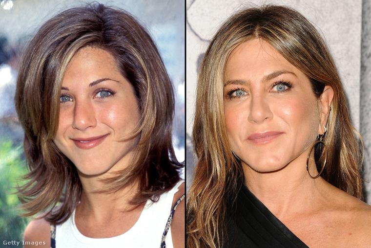 Az ismét szinglivé vált Jennifer Aniston arcberendezésén is sokat változtatott, hogy ma már nem egy természetellenes vonal emeli ki a szemét.