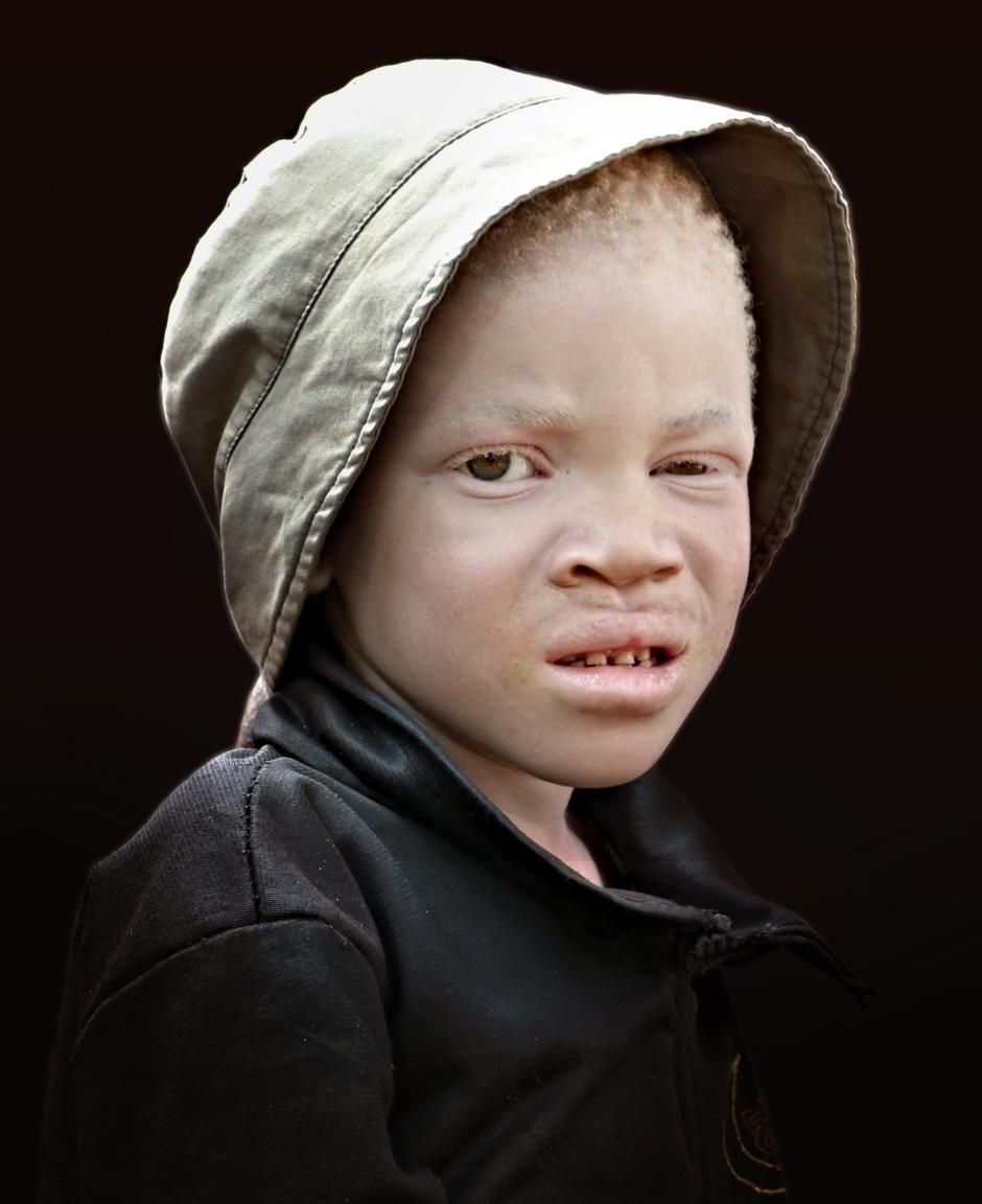 Ha azt halljuk, valaki a bőrszíne miatt ér bántódás, elsőre rasszisták által üldözött romákra, arabokra, négerekre gondolunk. De a kelet-afrikai Tanzániában, ebben a hazánknál csaknem tízszer nagyobb országban fehér bőrűnek lenni jelent életveszélyt – ha az a fehérbőrűség abból fakad, hogy valaki albínó. Az országban 2006-ban kezdődtek a rituális albínógyilkosságok és -csonkítások. Az albínó lakosság egy jelentős csoportja ezek ellen a támadások ellen az ország északi határára, a Viktória-tavon lévő Ukerewe szigetére menekült. A világon átlag minden húszezredik ember albínó, Tanzániában azonban a lakosság fél százaléka, az 55 milliós országban nagyjából 270 ezer ember pigmenthiányos (erre tudományos magyarázat a mai napig nincs). Az albínók testrészei az orvoslásnak tekintett varázslás fontos kellékei, ezért több ezer albínó volt a fetisiszták áldozata. Az albínók testrészeinek feketepiaca is kialakult, egy albínó ujj 1000 dollárt, egy fej 2500 dollárt is megért. Ukerewére sok megcsonkított albínó is menekült, a szerző olyannal is beszélt, akinek a kezét egy életlen macsetével nyiszabolták el, majd csontját egy bottal eltörve a kart lényegében kitépték a testéből.