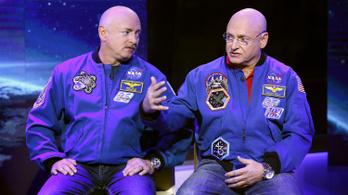 Egy évet töltött az űrben, azóta más a DNS-e, mint az ikertestvéréé