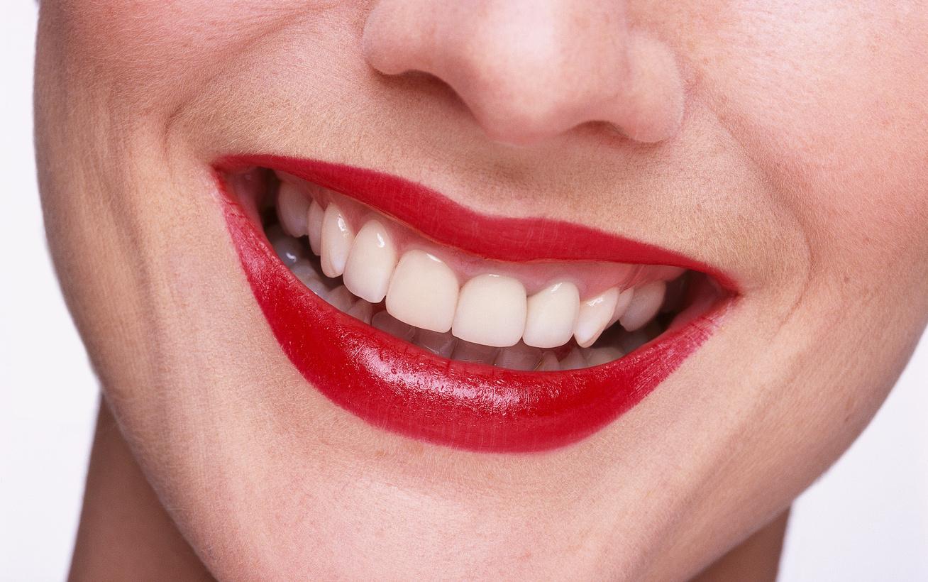 feher fogak